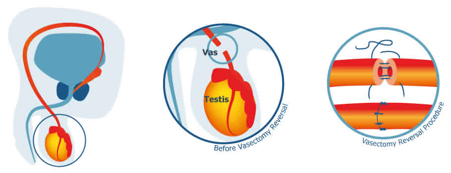 Vasectomy reversal - Herts & Essex Urology Ltd